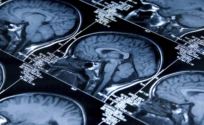 Team With Indian-Origin Researcher Find Brain Area That Recognises Facial Expressions