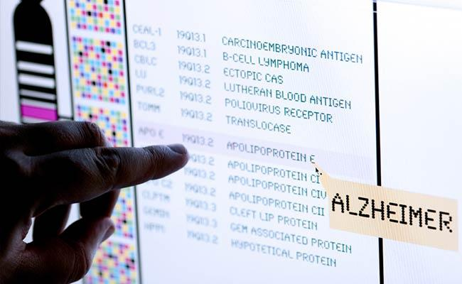 Artificial Intelligence May Predict Alzheimer's Disease
