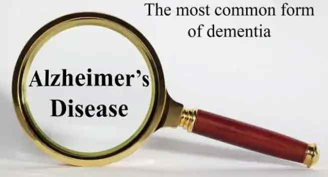 A protein in your brain can be your weapon against Alzheimer's disease