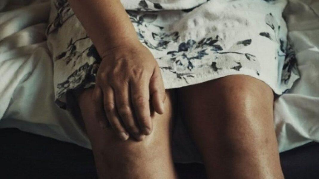 Gout cases increasing at alarming rate globally